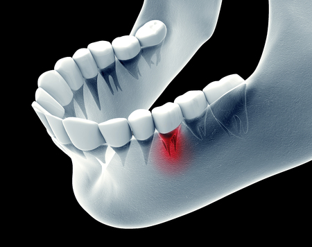 x-ray image of a jaw with teeth with one in pain 版權商用圖片