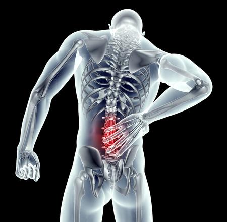 dolor espalda: imagen de rayos x de un hombre con dolor de espalda en negro con el camino de recortes. Foto de archivo