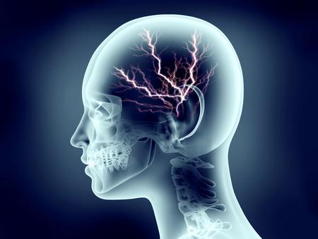 Röntgenbild des menschlichen Kopfes mit Blitz Standard-Bild - 50238690
