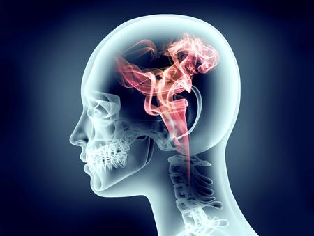 cognicion: imagen de rayos X de la cabeza humana con llamas