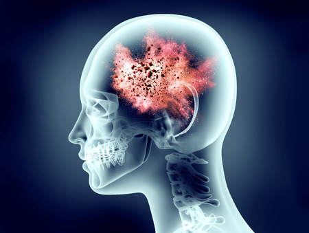 brainwaves: x-ray image of human head with explosion