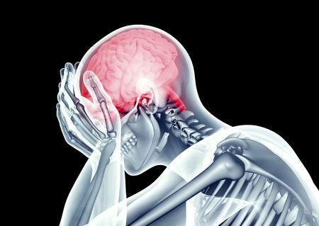 x-ray testa umana con mal di testa