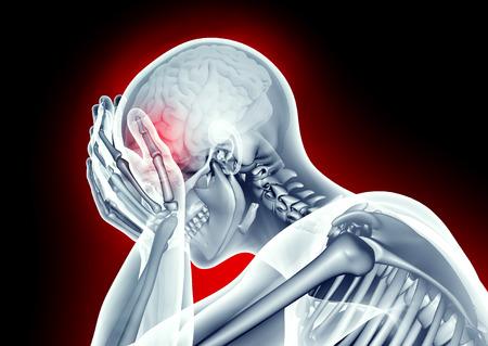 Röntgenbild menschlichen Kopf mit Kopfschmerzen Standard-Bild - 52734747