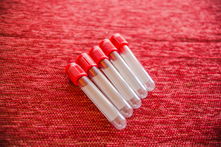 clot: Close up of Clot blood tube. They are made of clear plastic and keeping clot blood non-anticoagulant.