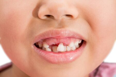 Milk teeth that are about to fall