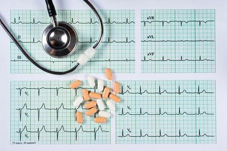 Papel cuadriculado de electrocardiograma EKG, estetoscopio y lápiz, primer plano. Foto de archivo