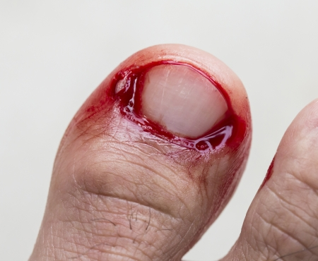 toenail: Bleeding at toenail resulting from the impact with the solid