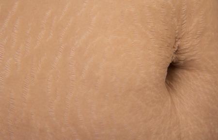 Women with skin stretch, stretch marks skin. photo