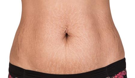 vientre femenino: Cuerpo de las mujeres con el vientre de grasa y estrías Foto de archivo