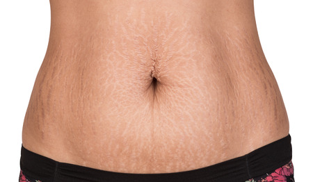 Women body with fat belly and stretch marks