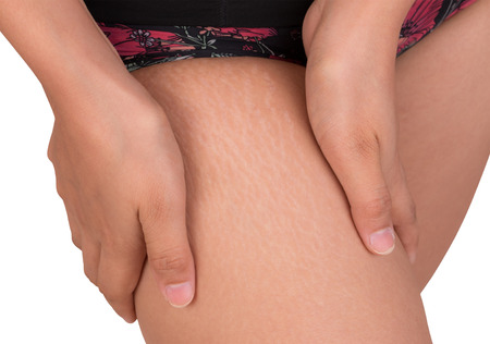 marks: Women with stretch marks of skin on the thigh
