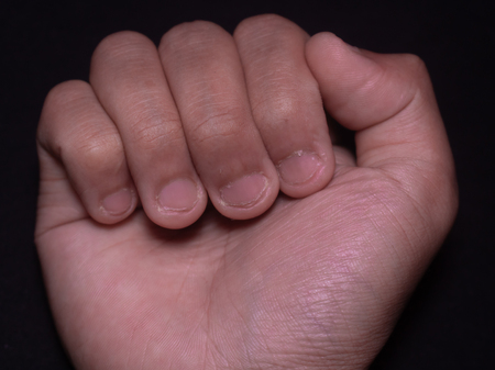 photo of reddish brown hand nails cut by teeth with black isolated background.
