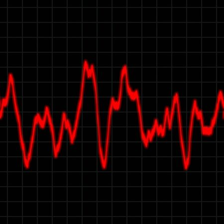 heart monitor: Illustration of the electrical activity of the human heart.