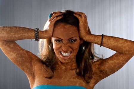 bad condition: A woman posing with a medical skin condition that looks like vitiligo or leucoderma.