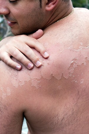 Close up detail of a very bad sunburn showing the peeling blistered skin of a mans back.  Shallow depth of field. Stock Photo
