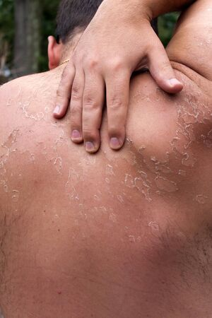 unprotected: Close up detail of a very bad sunburn showing the peeling blistered skin of a mans back.  Shallow depth of field. Stock Photo