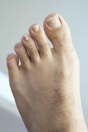 인간의 발과 금이 박리 발가락 손톱과 발가락의 근접 촬영입니다.