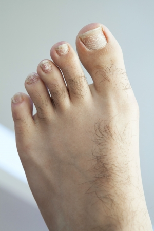 Closeup of a human foot and toes with cracked and peeling toe nails. Stock Photo