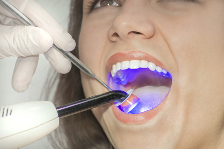 Dental care blue light concept - Portrait of a beautiful smile woman at dentist office