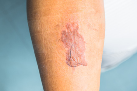 Severe burns on leg  photo