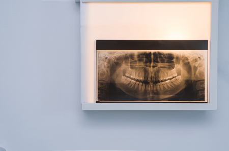 Analyzing dental x-ray, tooth x-ray in viewer on the wall.