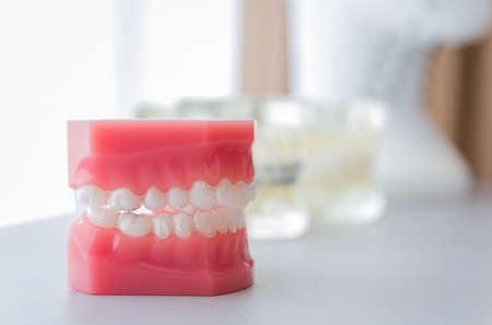 Dental model of invisible dental device to showcase to the customer.