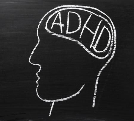 手紙 ADHD 注意欠陥多動性障害脳領域の略で黒板に描かれた人間の頭 写真素材