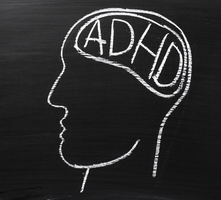 hyperactivity: A human head drawn on a blackboard with the letters ADHD which stand for Attention Deficit Hyperactivity Disorder in the brain area Stock Photo