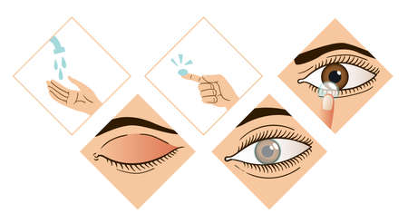 Contact lens infographic. Instruction how to put on lenses. 5 steps wash your hands, take a lens, check the position of the lens. Carefully insert the lens. Design of the brochure 矢量图像