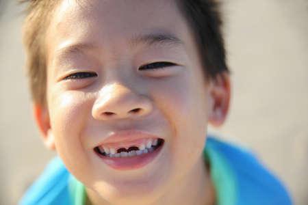 front teeth: caucasian boy losing front teeth, happy smile