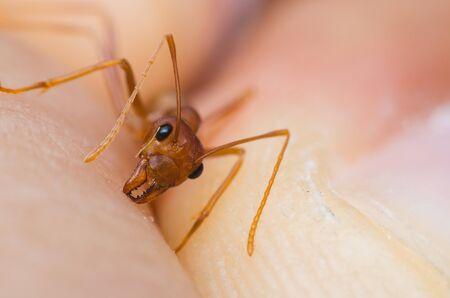 red ant biting human hand skin. Stock Photo