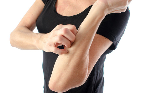 eczema: Woman scratching her arm, isolated on white