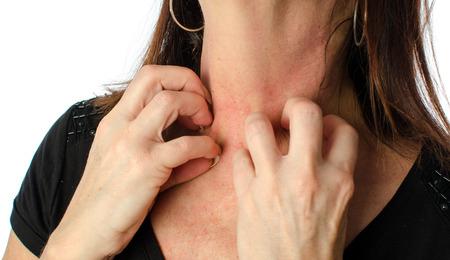 sarpullido: Mujer rascarse su cuello, aislado en blanco Foto de archivo