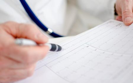 of electrocardiogram: Doctor analyzing electrocardiogram, closeup