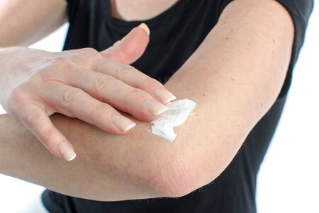 Woman putting relaxing cream on her elbow