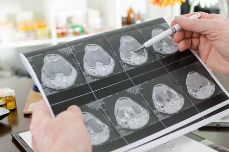 mri scan: Doctor analyzing a MRI scan, closeup