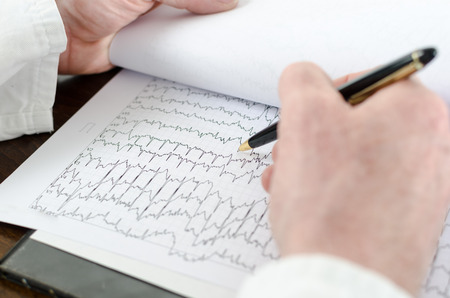 analyzing: Doctor analyzing an electrocardiogram, closeup