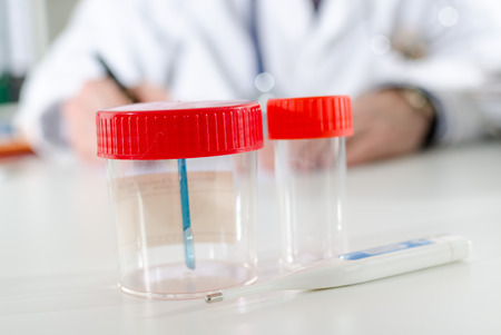 urinalysis: Sample container on the desk of a doctor
