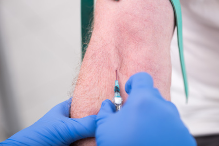 Injection of a catheter in the arm of a patient Stock Photo