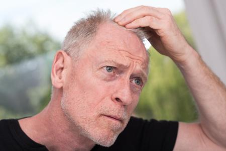 Perdita dei capelli uomo