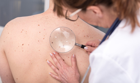 Dermatologist examining the skin on the back of a patient Stock Photo