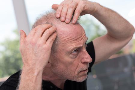 Senior man concerned by hair loss