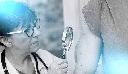 Dermatologo che esamina la pelle sul braccio di un paziente; esposizione multipla