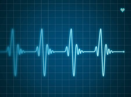 elettrocardiogramma: Elettrocardiogramma blu Archivio Fotografico