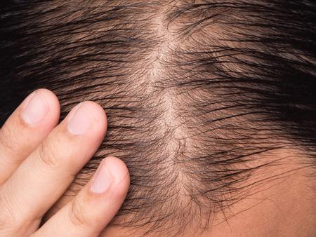 closeup of hair lose or bald head man Stock Photo