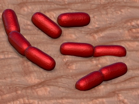 bacterial: infezione batterica