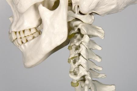 fractura: cr�neo humano anatom�a