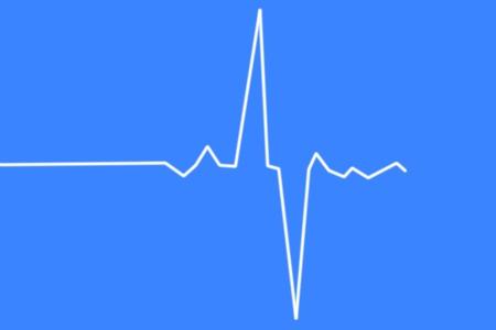 electrocardiograma: electrocardiograma latido médica Foto de archivo