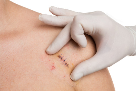 Doctor hands checking stitches after mold removal surgery on woman shoulder Stock Photo
