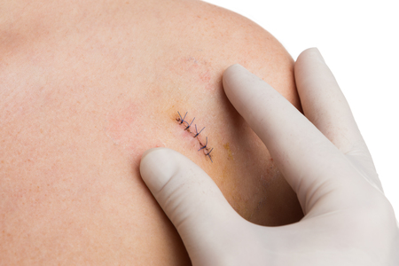 Medic or nurse hands examining fresh suture on woman shoulder after mold or birthmark removal surgery